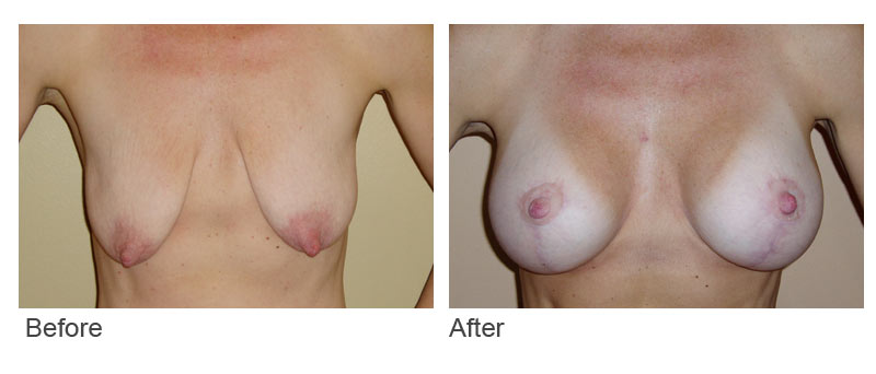 bf-template-Mastopexy-Augmentation