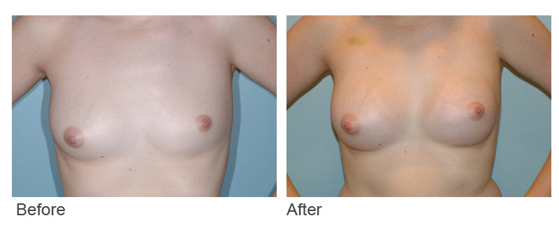 case-Breast-Asymmetry